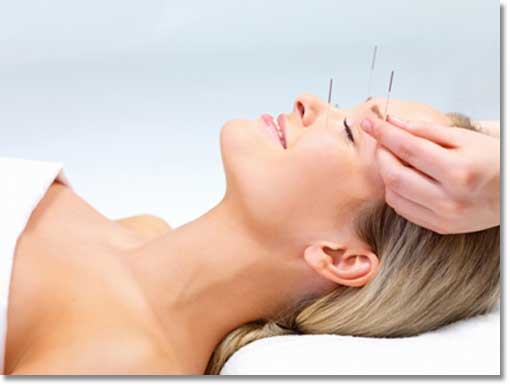 cosmetic_acupuncture